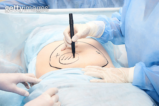 liposuction operation. Doctor hands near belly