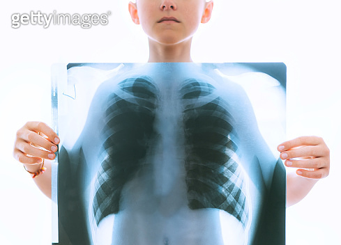 Young teenage boy holding a chest and lungs x-ray film scan in front of the body on the white backlight background. Medical diagnosis and treatment of respiratory diseases concept image.