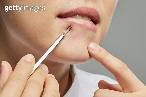 사람피부, 사람피부 (주요신체부분), 피부과, 의료성형뷰티 (주제), 여드름
