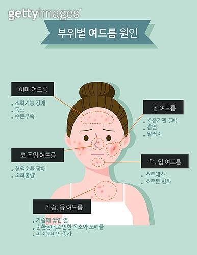 스킨케어 (뷰티), 피부트러블 (질병), 사람피부 (주요신체부분), 여드름, 뾰루지, 화농성