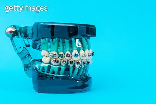 Orthodontic model on blue background
