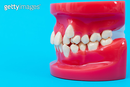 Crooked teeth model on blue background